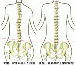 背骨・骨盤の湯がん状態と正常の状態のイラスト